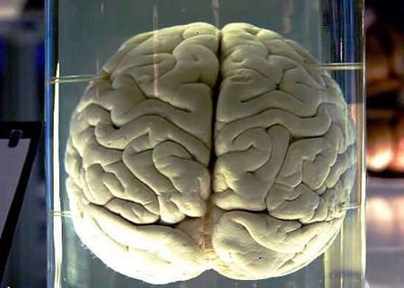 Alimlər beynin öyrənilməyən yeni zonalarını kəşf ediblər