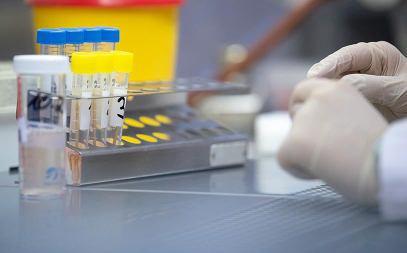 За сутки число инфицированных коронавирусом в мире возросло более чем на 103 тыс.